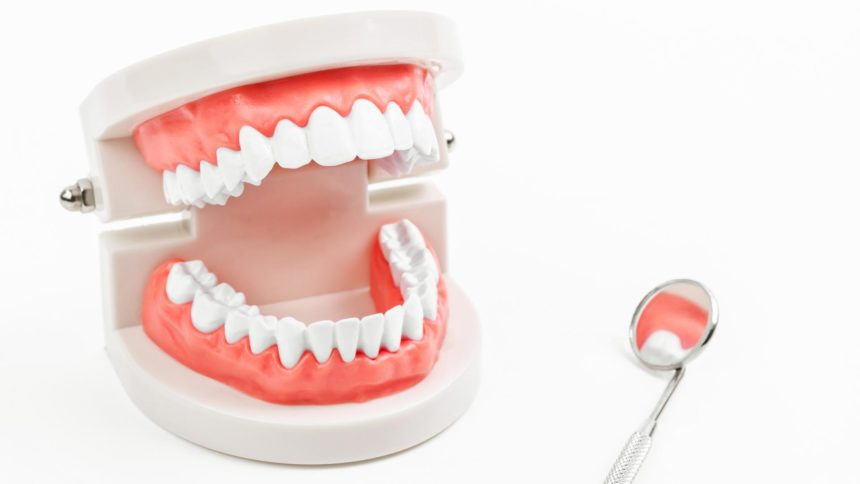 Dentures Over Implants